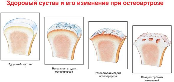 лечения остеоартроза