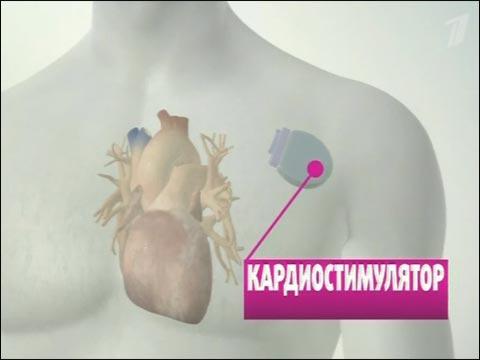 cardiostimulyator